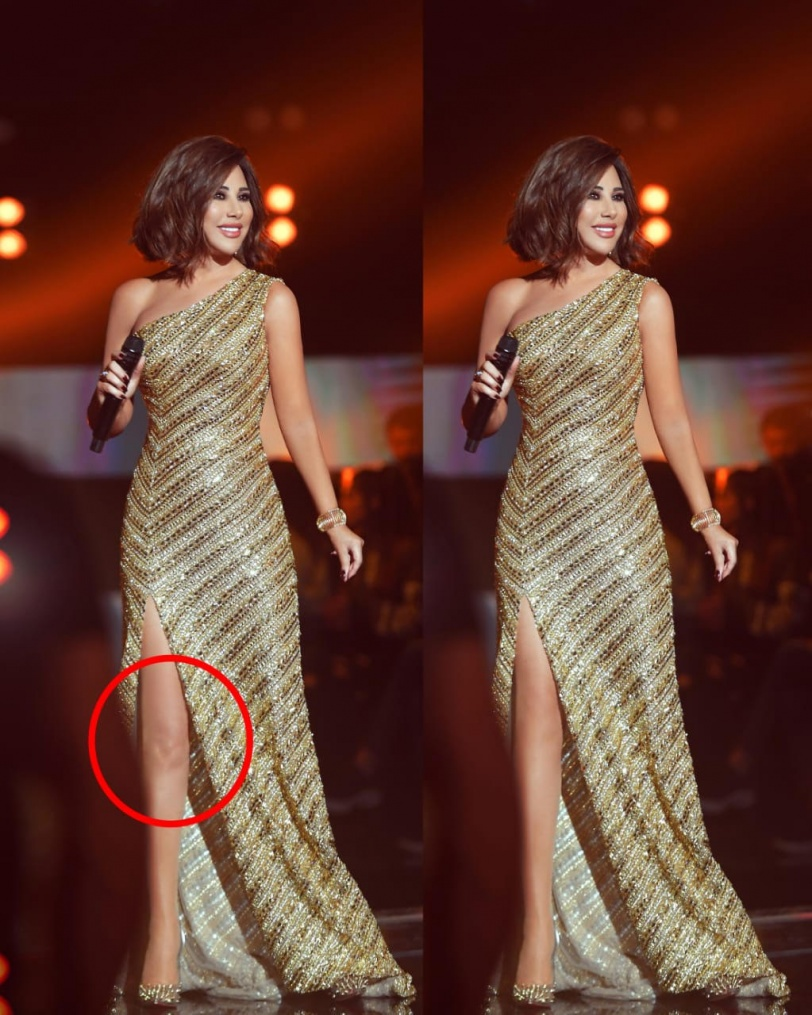 حقيقة صورة ركبة نجوى كرم التي شغلت مواقع التواصل الاجتماعي