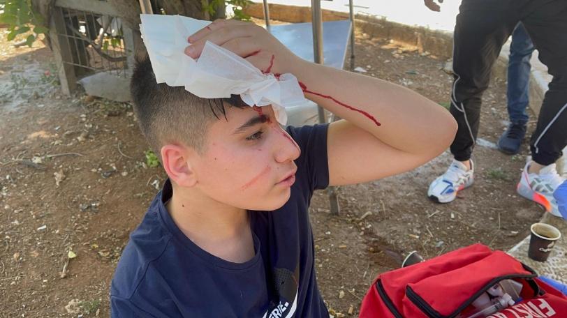 إصابات واعتقالات- الاحتلال يقمع مظاهرات باب العامود والشيخ جراح