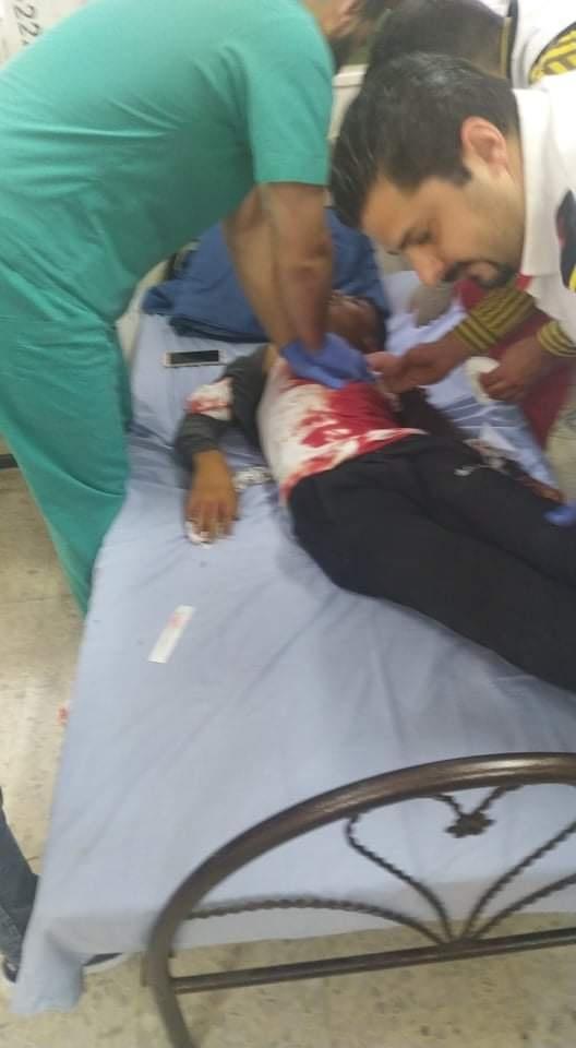 شهيد و110 اصابات  في بيتا جنوب نابلس