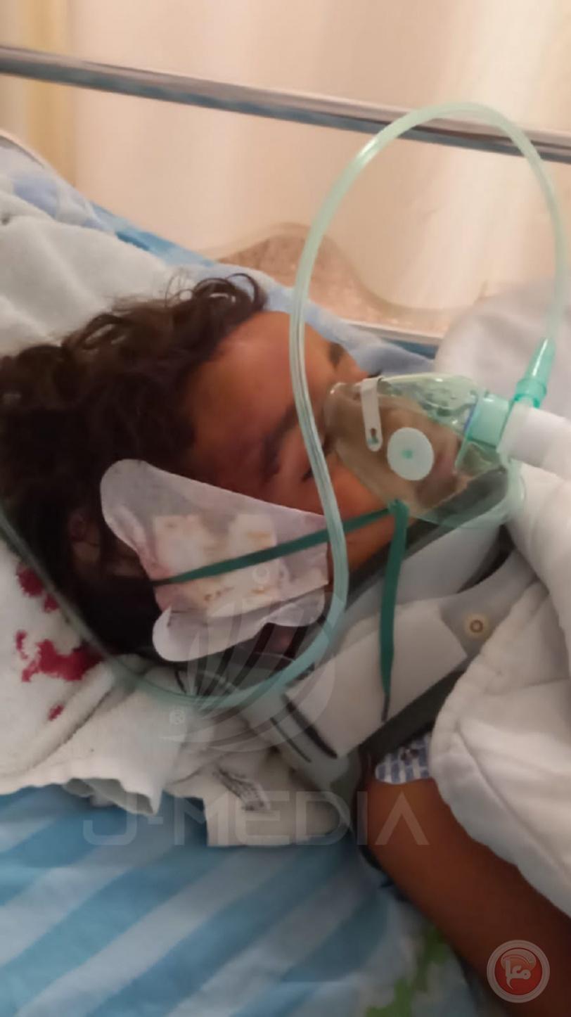 اصابة 9 اشخاص بينهم طفل حالته خطرة نتيجة اعتداء المستوطنين في المفقرة  جنوب الخليل