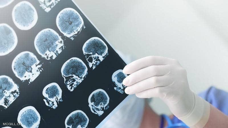 """علماء يتوصلون لتقنية تقضي على """"السرطان الشرس"""""""