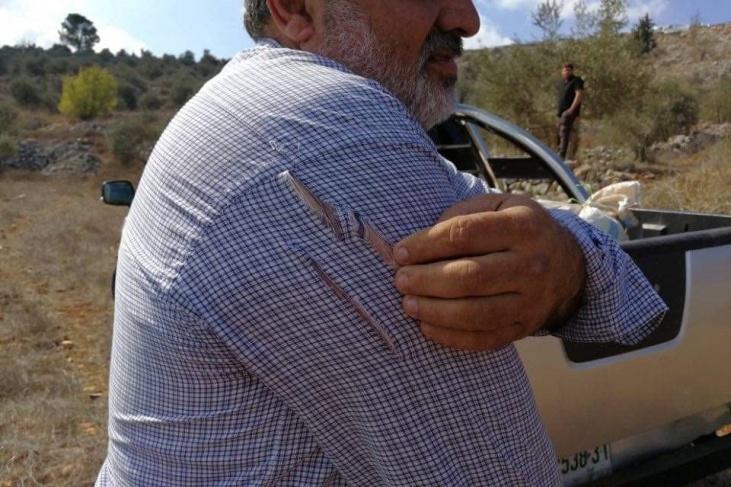 اصابات خلال هجوم المستوطنين على مزارعي نابلس